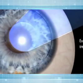 CBS Health Watch: Z LASIK